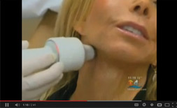 Alpha-Weight-Orlando-Apollo-Skin Tightening Video link
